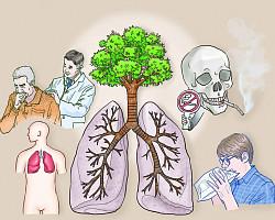 시니어에게 가장 치명적인 암, '폐암'