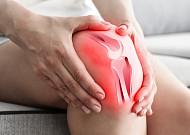 퇴행성관절염 '단계별 치료'… 어떻게 다를까?