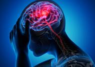 난치 질환 '모야모야병' 유일한 치료법은?