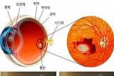 IBS-서울대 공동연구팀 '노인성 황반변성' 치료법 개발