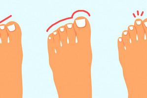 발가락 모양으로 알아보는 '성격 테스트'
