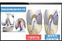 국내 무릎수술팀, '전방십자인대파열 수술 결과 재건 방식이 좌우한다'