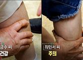 '핑거링 테스트'로 보는 근감소증…지방↓ 근육↑ '순환 운동(서킷 트레이닝)' 소개(생로병사의 비밀)