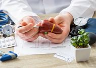 비알코올성 지방간염, 치료제 개발 실마리 찾았다