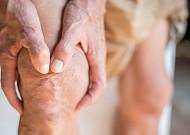 중년 여성 비만ㆍ심혈관질환, 하체 ○○이 중요하다