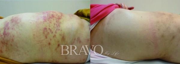 ▲건선 질환의 치료 전후 모습. 좌측이 치료 전 모습이다.(강남동약한의원 제공)