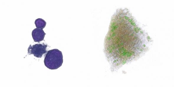 ▲HT(홀로토모그래피)현미경으로 관찰한 백혈구(좌)와 간세포(우). (제공: 토모큐브)