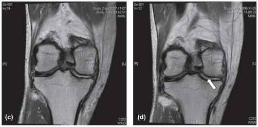 ▲한국 임상1상 011번 환자의 MRI 결과 (c) 인보사케이 투약 전  (d) 인보사케이 투약 후 12개월 경과 상태  (Ha et al., 2012, Cytotherapy)