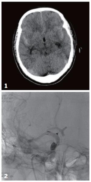 ▲1 회색 뇌실질을 따라 하얗게 보이는 것이 뇌지주막하 출혈로 최초 내원시 촬영된 뇌 CT 사진. 2 미세 카테터를 이용해 코일을 박리성 뇌동맥류에 삽입하여 치료하는 장면. (인천성모병원)