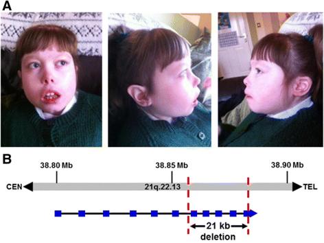 ▲소두증 및 자폐증을 가지는 환자의 유전체 연구를 통해 염색체 21번의 미세결손에 의한 DYRK1A 유전자가 자폐증의 원인임을 규명