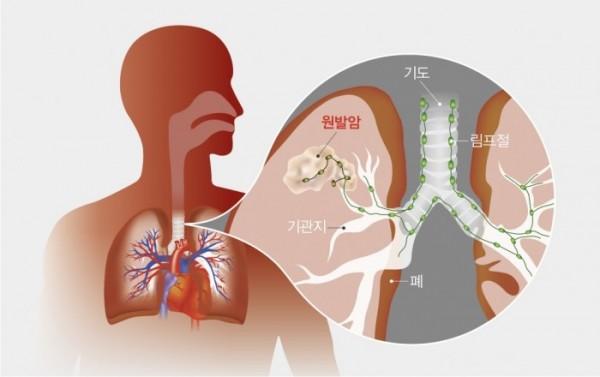 ▲폐암은 혈관과 림프절을 통해 쉽게 전이되기 때문에 주의해야 한다.