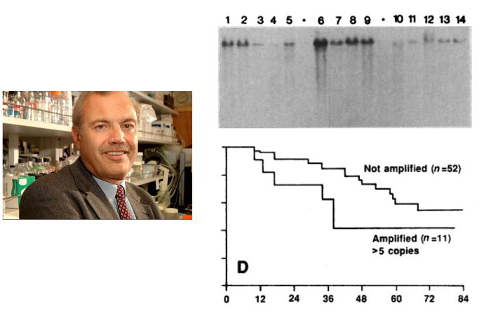 ▲그림 4 HER2와 유방암과의 관계. 데니스 슬라몬 (Denis Slamon) 은 HER2 유전자가 일부 유방암 조직에서는 과다하게 증폭되어 여러 카피가 존재함을 확인하였다. 3,4 번 칸은 단일 카피의 HER 유전자가 있는 반면, 1,2번은 2-5카피, 6번과 같이 강한 시그널이 있는 곳에서는 5-20카피 이상이 존재함을 의미한다. 또한 5카피 이상의 HER2가 존재하는 암종을 가진 환자의 경우 그렇지 않은 환자에 비해 매우 나쁜 예후를 보인다 [15]