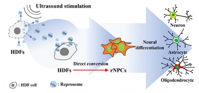 ▲초음파로 피부세포를 신경전구세포로 직접분화화는 기전