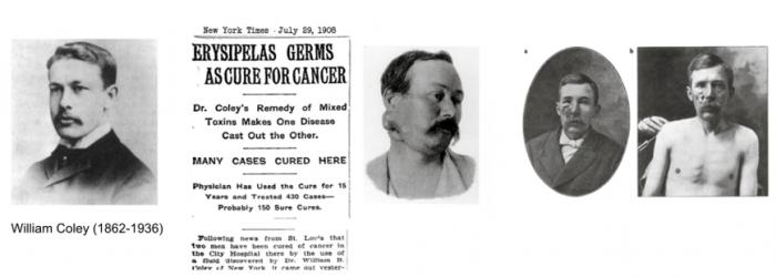 ▲그림 1 : (왼쪽부터) 면역항암치료의 시조라고 일컬어지는 윌리엄 콜리 (William Coley, 1862-1936). '콜리의 독소' 는 당시에 대중적으로 큰 화제를 불러일으켰다. 뉴욕타임즈 1908년 7월 29일자. 콜리의 첫 환자인 Zola라는 이름의 환자. 목 주변의 종양은 '콜리의 독소' 를 주사한 이후 급속히 줄어들었다. 콜리의 독소의 주입에 의해 눈에 띄게 종양이 줄어든 사례도 있었으나, 대부분은 심한 감염과 부작용을 수반하였다.