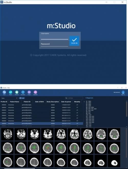 ▲m:Studio 의료진단 딥러닝 플랫폼(Medical Diagnosis Deep Learning Platform) (사진: 케이드시스템 제공)