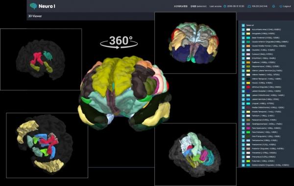 ▲인포메디텍이 개발한 치매 진단용 영상분석 소프트웨어