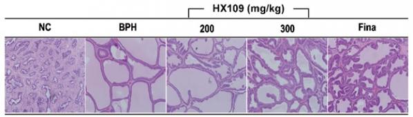 ▲전립선 비대증 랫드모델에서 HX109가 전립선 세포의 증식을 억제하는 현상을 보여주는 결과. 바이로메드 제공.