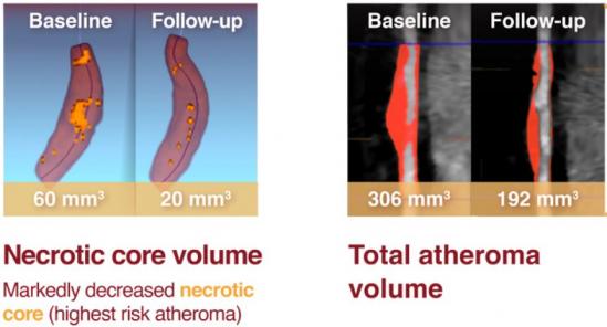 ▲관상동맥 죽종 감소(에이치디엘 발표자료)