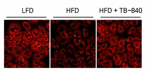 ▲TB-840 has the function of restoring the damaged mitochondrial function of hepatocytes