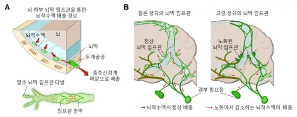 ▲[그림 1] 뇌막 림프관의 위치와 연령에 따른 구조변화 과정 A. 뇌의 노폐물이 뇌를 감싸고 있는 뇌척수액을 통해 배출되며 뇌척수액은 뇌 하부 뇌막에 존재하는 림프관을 통해 중추신경계 바깥으로 배출 B. 뇌 하부 뇌막 림프관들이 노화에 따라 뇌척수액의 배출 기능이 저하