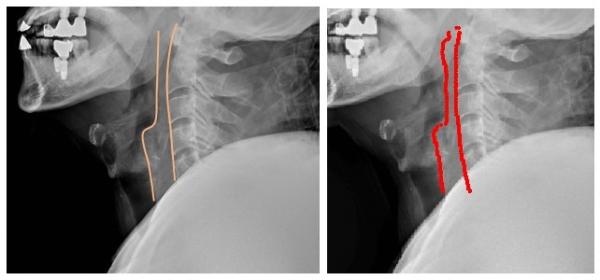 ▲실제 치과 보철치료를 받은 외상환자의 경추 X-ray 영상을 영상의학과 의사가 판독(사진 좌측)한 결과와 AI가 판독(사진 우측)한 결과를 비교했을 때 큰 차이를 보이지 않았다. 엑스레이를 판독할 때 척추 앞 공간을 보기 위해 척추 앞 공간선을 그리게 되는데 AI 역시 의사가 그린 공간선과 같은 모양을 그렸다. 세브란스병원 제공.