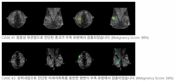 ▲Lunit INSIGHT for Mammography 예시, 루닛 홈페이지 자료.