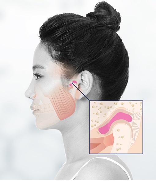 ▲턱관절 통증(아이디치과)
