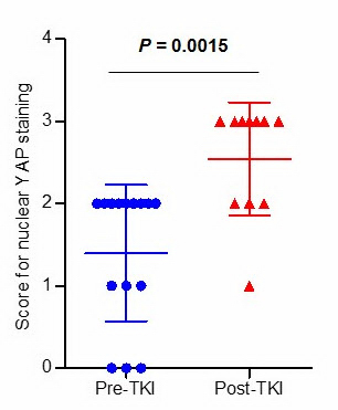 ▲항암치료 전(Per-TKI) YAP 유전자가 세포질내(1~2)에 많은 것으로 확인됐지만 항암치료 후(Post-TKI) 세포핵 내(3)에 YAP 유전자가 더 많이 측정됐다.