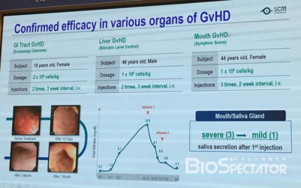 (▲이식 편대 숙주 질환(GvHD) 환자 대상 치료효과 발표자료)