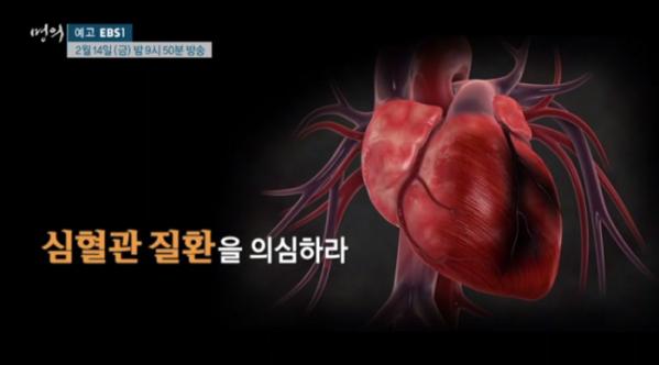 EBS 명의, '가슴 통증' 심장내과 김원ㆍ최재웅 교수가 전하는 심혈관 질환 예방법과 치료법