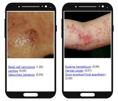 ▲검버섯으로 오인하기 쉬운 기저세포암(Basal cell carcinoma)을 AI가 진단한 결과(왼쪽부터). 아토피피부염으로 오진하기 쉬운 단순포진 바이러스에 의한 포진상 습진(Eczema herpeticum)을 AI가 진단한 결과. http://modelderm.com