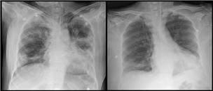 ▲이씨 역시 김씨와 마찬가지로 혈장치료 후 폐 곳곳에 보이던 폐렴 증상이 개선됐다. 세브란스병원 제공.
