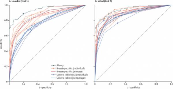 ▲AI의 도움을 받기 전과 후의 판독 정확도 변화 그래프 (ROC 커브)