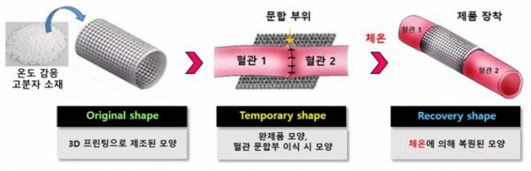▲혈관 문합부 협착 방지 및 맥관 재생 제품 작용원리(티엠디랩 제공)