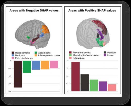 ▲인공지능 알고리즘이 뇌 MRI을 기반으로 분석해 제공하는 알츠하이머 질환 진단에 중요한 뇌 영역과 중요도(좌)와 정상 판단에 중요한 뇌 영역과 중요도(우) (뷰노 제공)