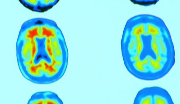▲알츠하이머 치매 환자의 뇌양전자 방출 단층촬영(PET) 영상이다. 왼쪽에서 붉게 보이는 부분이 베타 아밀로이드로, 치료제를 투입하자 오른쪽처럼 사라졌다.