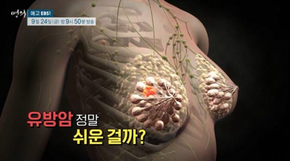 ▲'명의' 유방암(사진제공=EBS1)