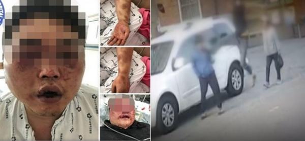 ▲광주 폭행사건 피해자 모습(사진 왼쪽)과 70대 노인 폭행 장면.(페이스북 페이지, JTBC)