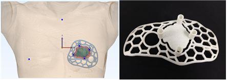 ▲자 맞춤형 3D 수술 가이드 모델 적용 그래픽(왼쪽) 및 실제 사진(오른쪽)  (서울아산병원)