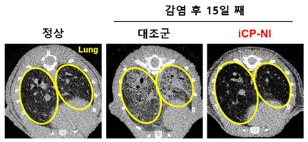 ▲iCP-NI의 폐 섬유화 방지 효능: 폐(노란선 안) – 섬유화된(흰색) 폐조직 (사진제공=셀리버리)