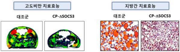 ▲CP-deltaSOCS3의 비만 치료효능(빨간색이 지방) 및 지방간 치료효능 (자료제공=셀리버리)