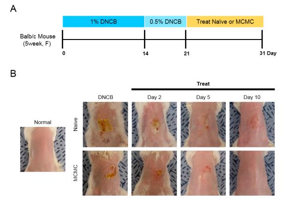 ▲아토피 피부질환에 대한 줄기세포 유효성분 치료효과 (바이온 관계사 미래셀바이오)