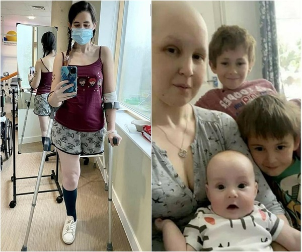 ▲아이 위해 치료를 포기하고 다리를 절단한 캐슬린 오즈본. (출처=페이스북 갈무리)